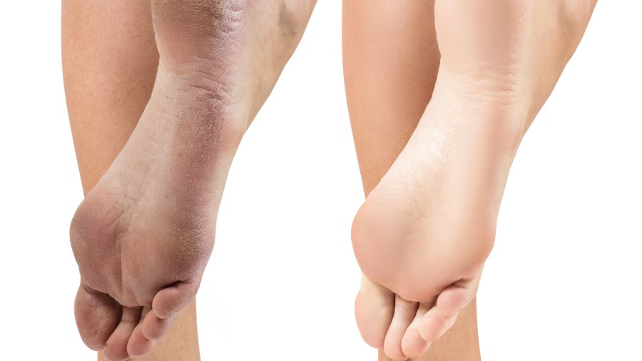 Before-After-Foot-Treatment-Stock-Photo