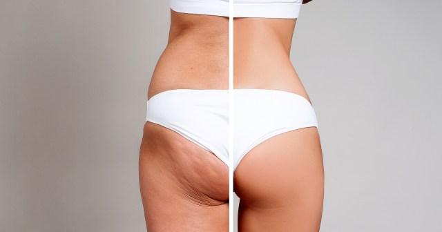 11 Best Cellulite Treatments for Women.jpg