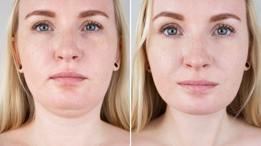 This-Retinol-Collagen-Lifting-Cream-Shows-Serious-Results-Just-15-Days