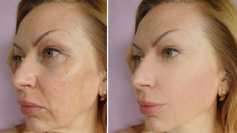 collagen-cream-sagging-skin