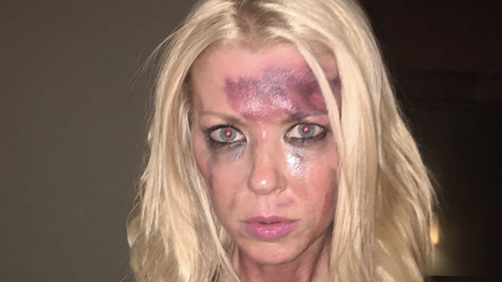 tara reid posts horrifying photo of herself looking battered and bruised