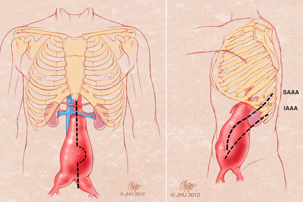 Abdominal Aortic Aneurysm When It S Surgery Time