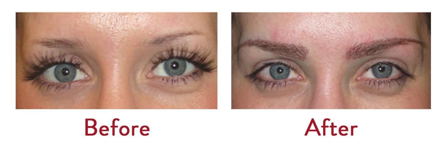 Thyroid Eyebrow Hair Loss Treatment