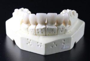 teeth acyclic