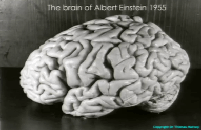 Einsteins brain was stolen