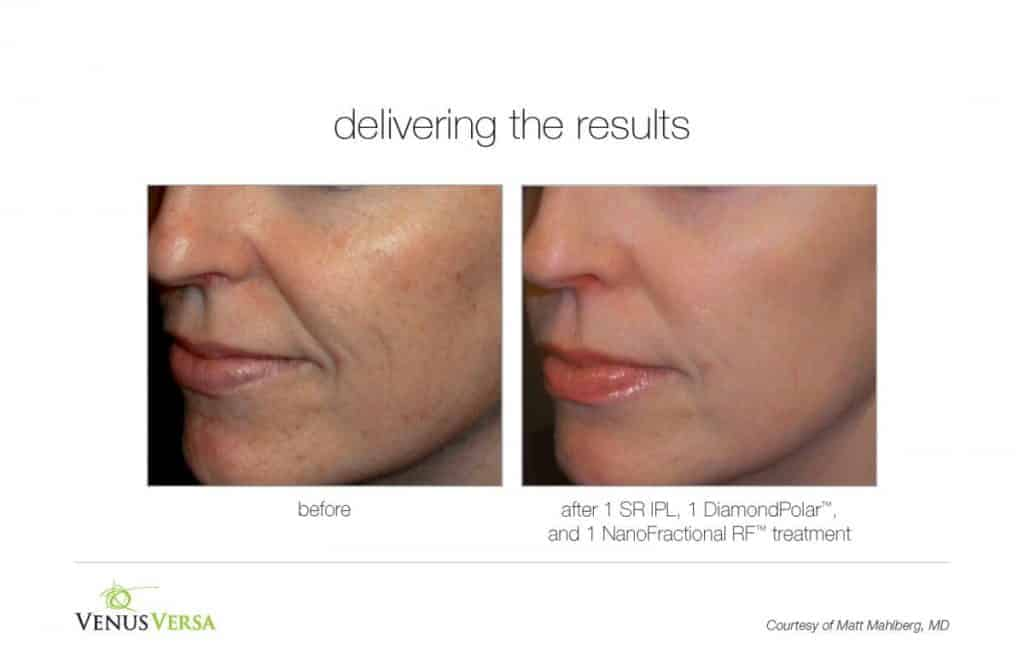 image of face before and after photorejuvenation