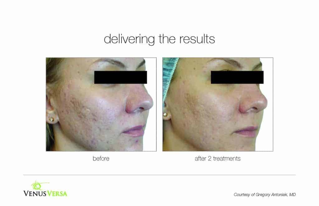 image of a woma's face before and after skin resurfacing