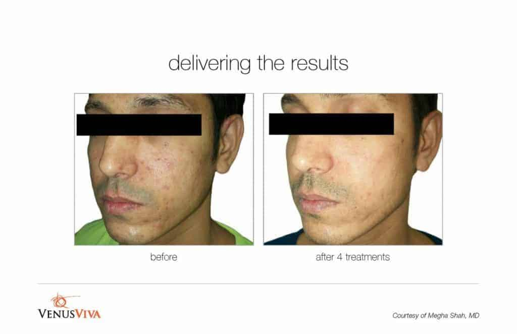 image of a man's face before and after Venus Viva treatment for scars