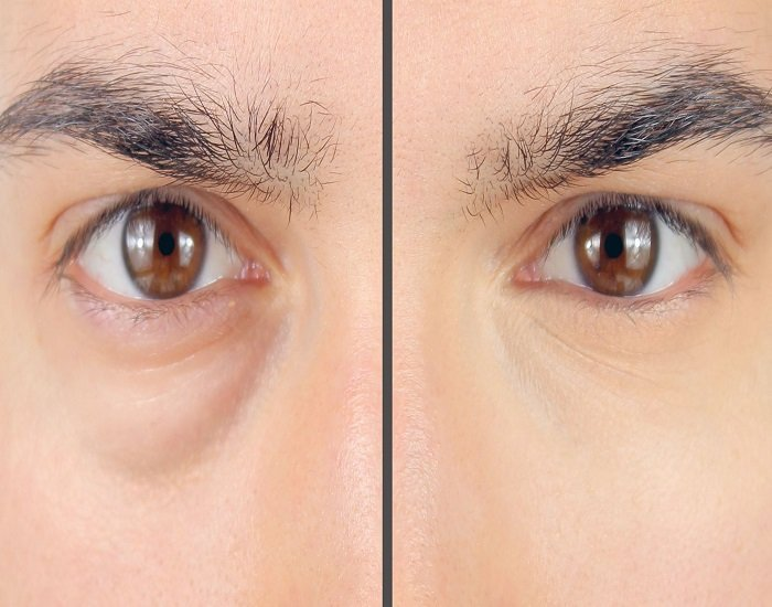 Hey Men How to conceal those dark rings around your eyes