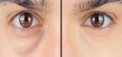 how to conceal dark rings with concealer for men