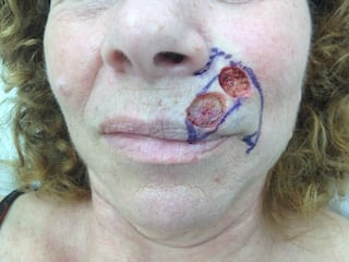 mohs surgery | Skin Cancer