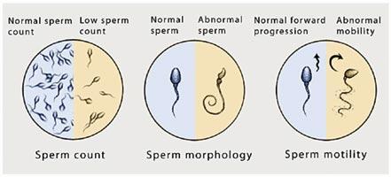 Sperm2