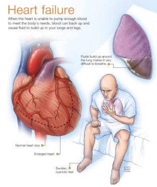 heart-pix-3