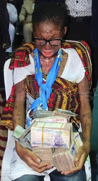 Acid victim, Jamila Yusuf