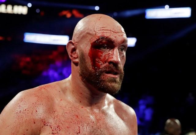 Fury sends cash to help cut man who saved Wallin fight