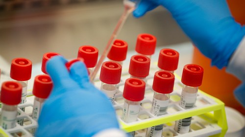 AU-ECOSOCC condemns French scientists' comment on testing COVID-19 vaccine in Africa