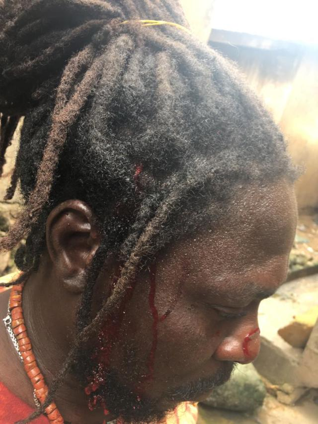 #EndSARS: Panic as hoodlums attack protesters in Osogbo again
