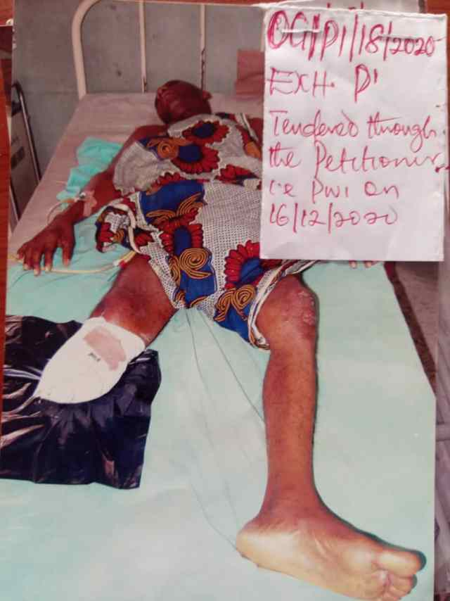 #EndSARS: I lost my leg to amputation after being shot by Police - Petitioner