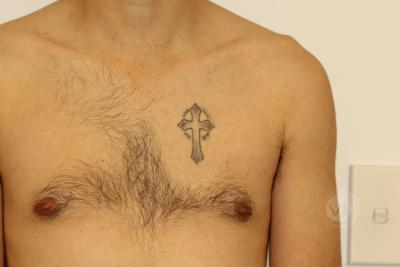 Black crucefix tattoo on chest before laser