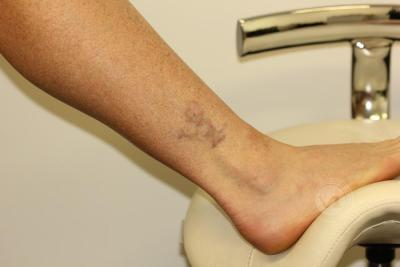 Black and red ankle tattoo after 3 treatments