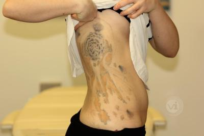 Large coloured rib tattoo after laser