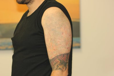 Multi layer coloured tattoo after 7 laser tattoo removal treatments