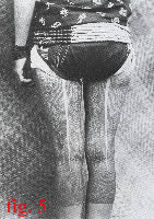 fig.5 Click for a closer look at these Dayak woman's thigh tattoos
