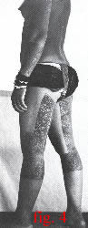 fig.4 Click for a larger picture of thigh and calf tattoos of a Dayak woman.