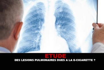 ИССЛЕДОВАНИЕ: Легочные поражения из-за электронной сигареты?