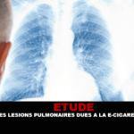 מחקר: נגעים ריאתיים עקב הסיגריה האלקטרונית?