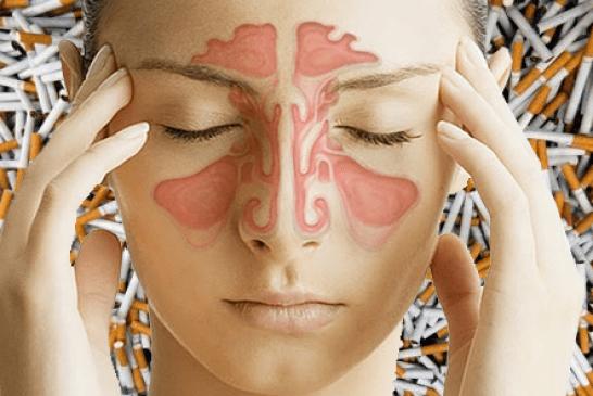 SANTE : Il faut 10 ans sans tabac pour récupérer des sinus sains