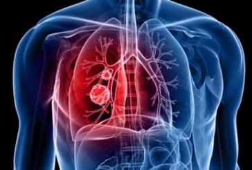 SANTÉ : Un professeur fait un point sur le cancer du poumon.