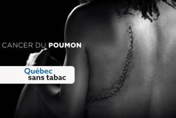 CANADA : Une campagne publicitaire montre les dégâts du tabagisme.