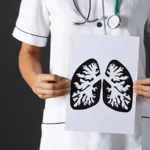 STUDY: The risk of lung cancer does not disappear in the former smoker