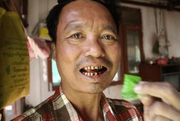 BIRMA: 59% van de sterfgevallen is het gevolg van tabaksgerelateerde ziekten!