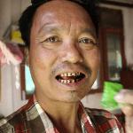 בורמה: 59% ממקרי המוות הם תוצאה של מחלות הקשורות לטבק!