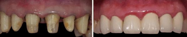 Металлокерамические коронки на передние зубы: фото и описание