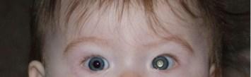 L'effetto bianco della pupilla nelle fotografie può indicare una malattia degli occhi