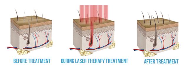 Laser Hair Restoration Technique