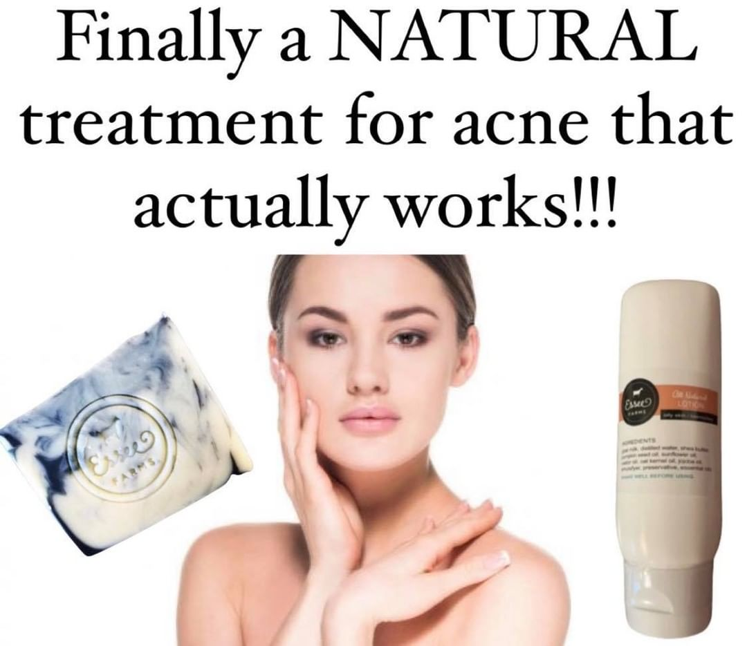 struggling with acne visit us at esseefarmscom to find out display image bbd