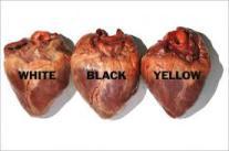 razzismo-cuore
