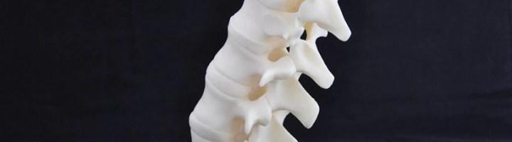 ASA 3D Print VSHAPER Medisch medical