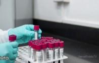 Regione Piemonte : aggiornato l'elenco dei laboratori di analisi privati autorizzati all'attività