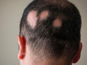 Saiba o que é Alopecia Androgenética