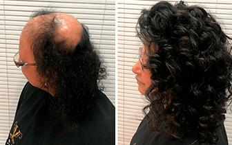 Prótese Capilar em cliente com Alopecia.
