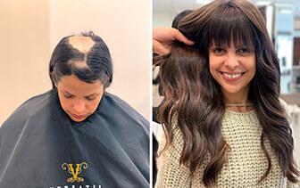 Prótese capilar para queda de cabelo