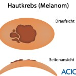 Hautkrebs malignes Malanom