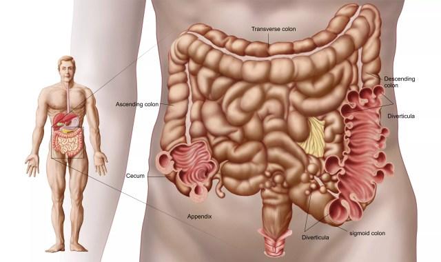 Diverticulitis in the descending colon region of the human intestine.