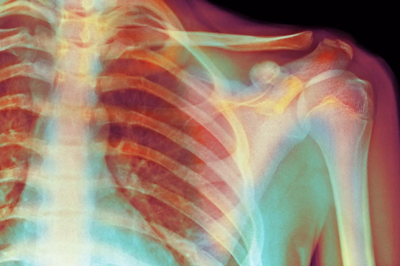Skeletal X-Ray Shoulder