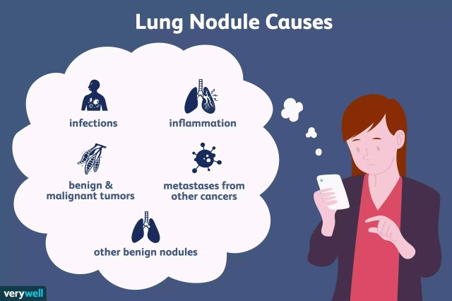 lung nodule causes